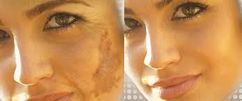 Hiệu quả sau khi điều trị nám da bằng Melasma DNA Corrector